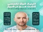 کاشت موی طبیعی در شیراز