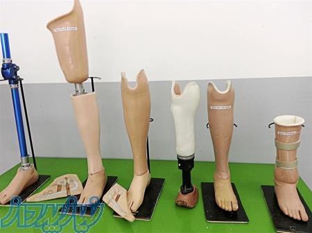 ساخت پای مصنوعی در کرج