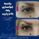 لیزر موهای زائد بدن زنان ، درمان جوش سرسیاه روی بینی ، هزینه پلکسر بینی