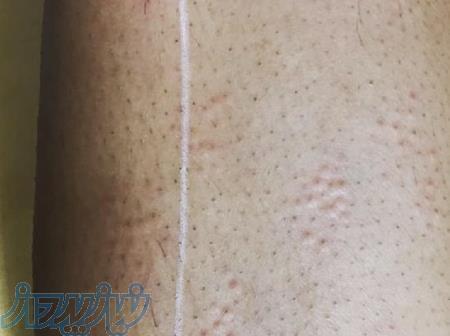 لیزر موهای زائد با دستگاه دایود ایتالیا در کیش