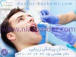 دندانپزشکی زیبایی - تهران