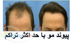 پیوند موی طبیعی تنها راه درمان آلوپسی و موهای از