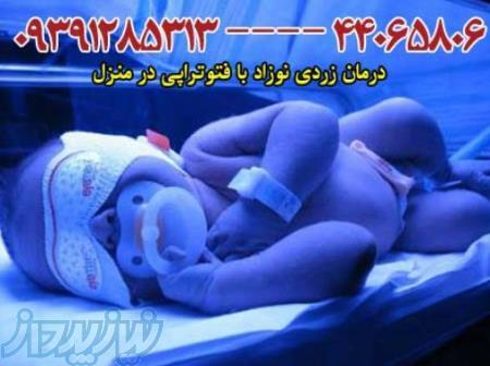 دستگاه زردی نوزاد - تهران