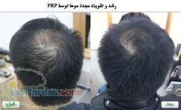 کلینیک ایران پوست کاشت مو با PRP رایگان