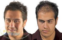 پودر پر پشت کننده موی سر مورست 12 5 گرمی