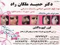 جراحی پلاستیک بینی(دکتر ملکان راد)  - تهران