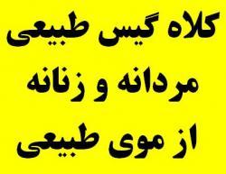 سفارش کلاه گیس زنانه و کلاه گیس مردانه  - تهران