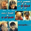 کلینیک تخصصی ترمیم مو گلهای تهران