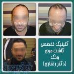 کاشت موی طبیعی به روش FIT