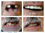 دندانسازی فریدون عشقی