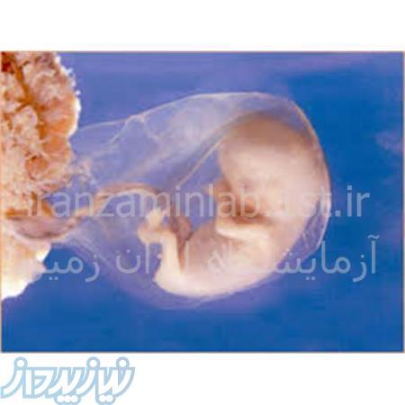 آزمایش غربالگری جنین