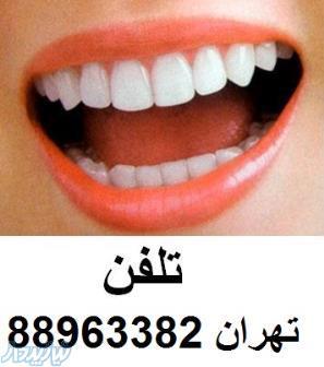 خدمات دندانپزشکی دندانپزشکی شبانه روزی عصب کشی دندان