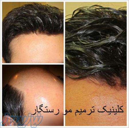 مرکز تخصصی ترمیم مو رستگار