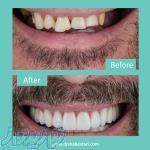 دندانپزشکی زیبایی در مشهد