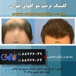 موسسه ترمیم مو گلهای تهران نماینده رسمی های فیکس المان