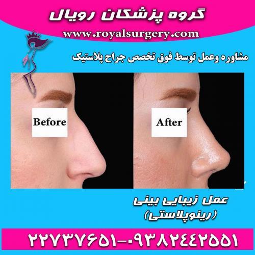 جراحی بینی  - تهران