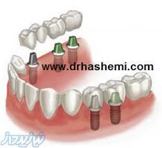 مرکز کاشت دندان ( ایمپلنت ) دکترسیداحمدرضاهاشمی
