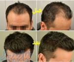 کاشت مو و ابرو و ریش در کلینیک آذر